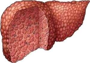 Народные средства при циррозе печени - http://www.doctorate.ru/folk-medicine-liver-cirrhosis/