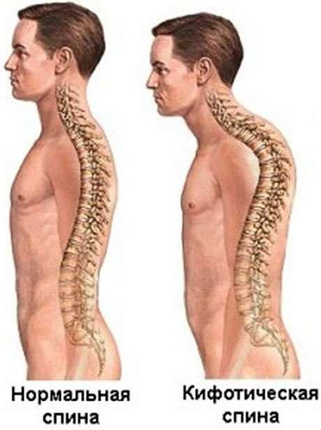 Что такое кифоз и склероз