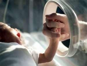 Недоношенные дети (premature babies)
