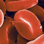 Малокровие (анемия) — лечение народными средствами