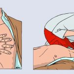 Элементарная реанимация (оживление организма)