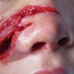 Раны и порезы — народные средства для заживления