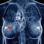 Лечение женской онкологии народными средствами — ч. 3