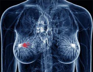 Лечение женской онкологии народными средствами (Treatment of female cancer folk remedies)