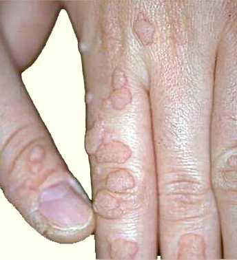 Удаление бородавок между пальцами на ногах