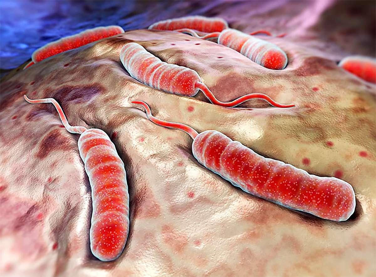 Холера доклад по биологии 3708