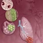 Как лечить инфекционного больного
