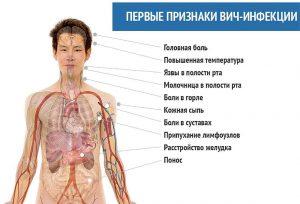 Признаки вич инфекции (signs of HIV infection)