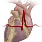 Что делать при аритмии (нарушении сердечного ритма)