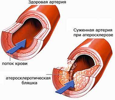 лекарства для очищения печени от шлаков
