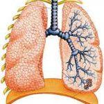 Бронхит — описание, симптомы и лечение болезни