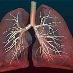 Лечение пневмосклероза