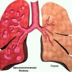 Бронхоэктатическая болезнь — описание болезни
