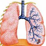 Бронхоэктатическая болезнь — описание и лечение