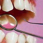 Как определить, какие зубы лучше вставить