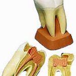 Зубные болезни