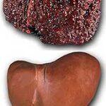 Цирроз печени — лечение народными средствами