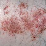 Васкулит — описание болезни