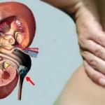 Мочекаменная болезнь — лечение травами