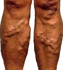 Варикозное расширение вен - описание болезни