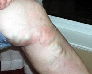 Тромбофлебит - описание болезни