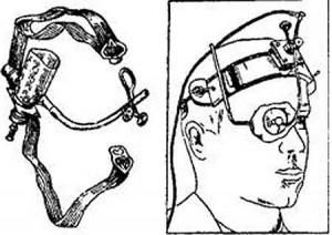 Диатермия глаза