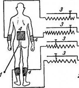 Схема включения больного при общей диатермии через распределитель тока