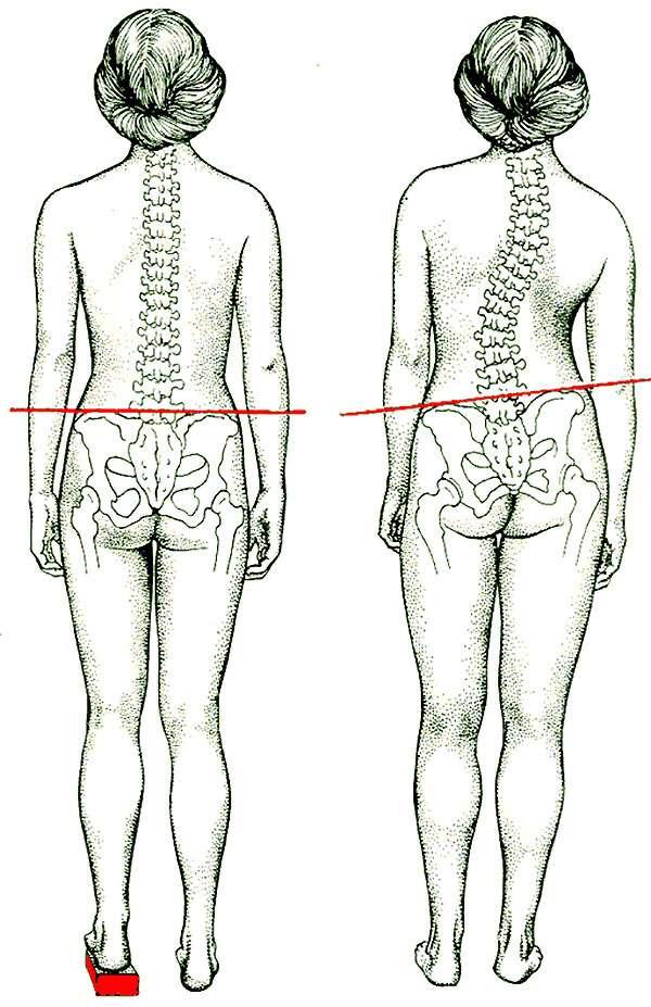 Упражнения по коррекции осанки для сутулой спины