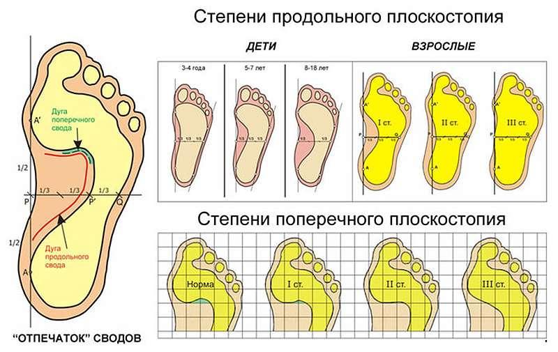 Плоскостопие у взрослых: симптомы и лечение