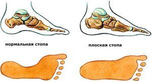 Плоскостопие нормальная стопа и плоская стопа