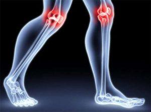 Лечение суставов рисовым квасом
