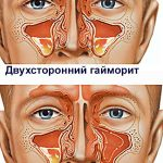 Гайморит — описание и лечение в домашних условиях