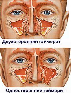 Гайморит: описание и лечение в домашних условиях