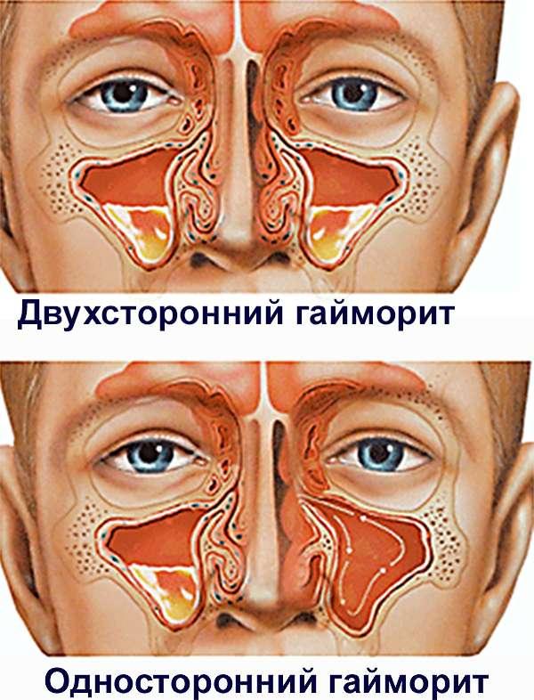 Народные средства лечения болезни голосовых связок