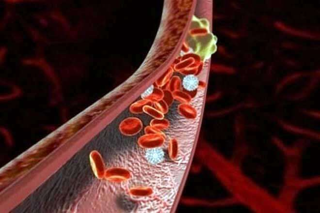 Профилактика образования тромбов
