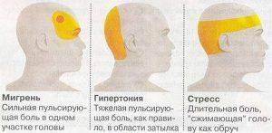 Домашнее лечение головной боли (Home treatment of headache)