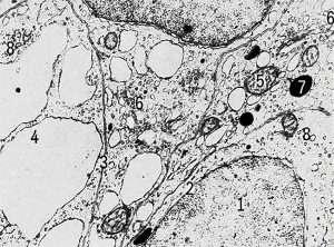 Клетки щитовидной железы крысы с включениями (Rat thyroid cells with inclusions)