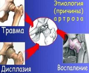 Этиология (причины) артроза (The etiology (cause) of osteoarthritis)