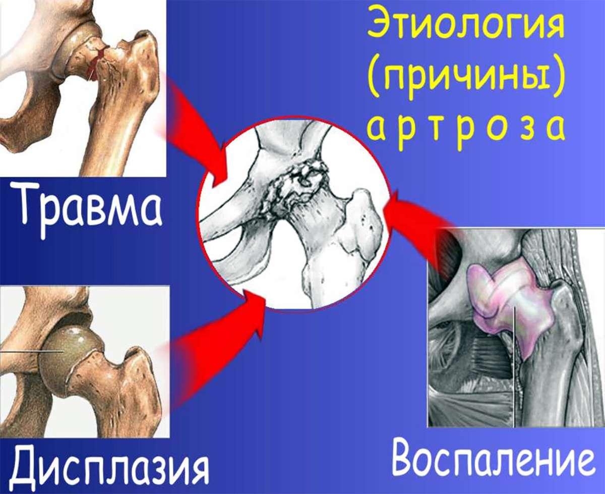 Артроз (Arthrosis)
