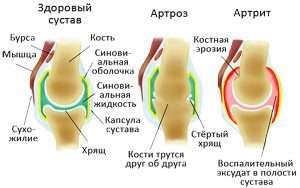 Изображение здорового сустава, артрита и артроза (A picture of a healthy joint, arthritis and osteoarthritis)