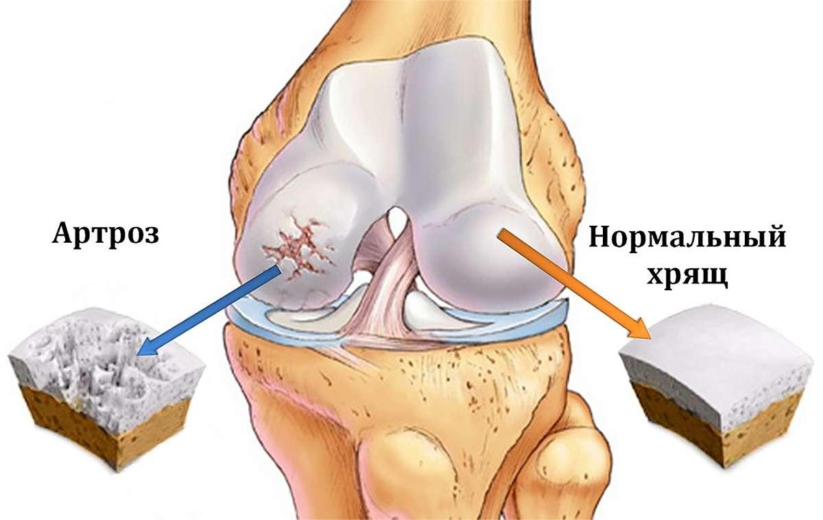 Изображение артроза и здорового хряща (A picture of osteoarthritis and healthy cartilage)
